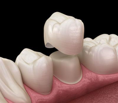 Emergency Dentist in Waterloo & London Bridge | Whites Dental
