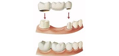 3 Unit Dental Bridge   Whites Dental