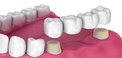 4 Unit Dental Bridge   Whites Dental