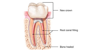 canal stage three | Whites Dental