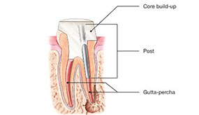 canal stage two | Whites Dental