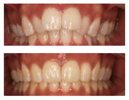 khadija   Whites Dental