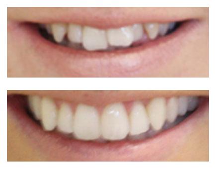 Mikala   Whites Dental