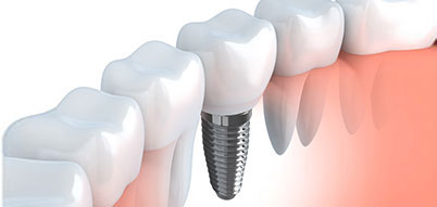 Dental Implant | Whites Dental
