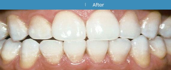 Teeth Whitening | Whites Dental