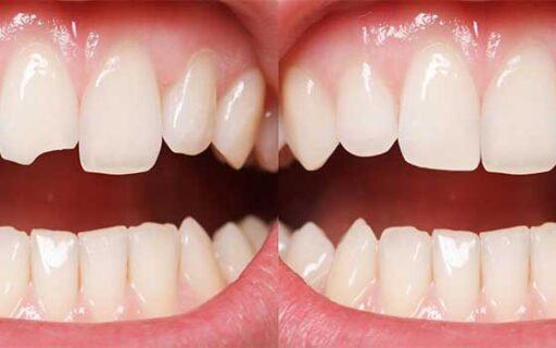 Composite Bonding | Whites Dental