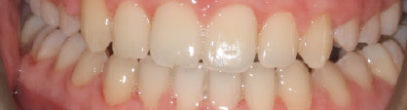 Composite Bonding and Veneers | Whites Dental