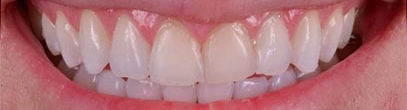 Composite Bonding and Veneers in London Waterloo SE1 | Ethically Priced | Whites Dental