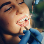 Emergency Dentist London Bridge | Whites Dental