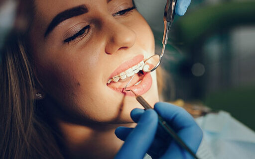 Emergency Dentist London Bridge | Whites Dental
