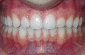 Orthodontist in London Waterloo | Whites Dental