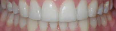 Invisalign Before and After London Bridge | Whites Dental