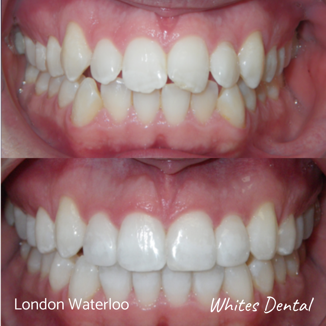 Fixed braces before and after. Whites Dental in London Waterloo