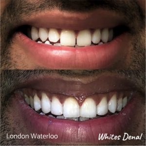 Composite Bonding before after | Cosmetic Dentist in London Waterloo 6