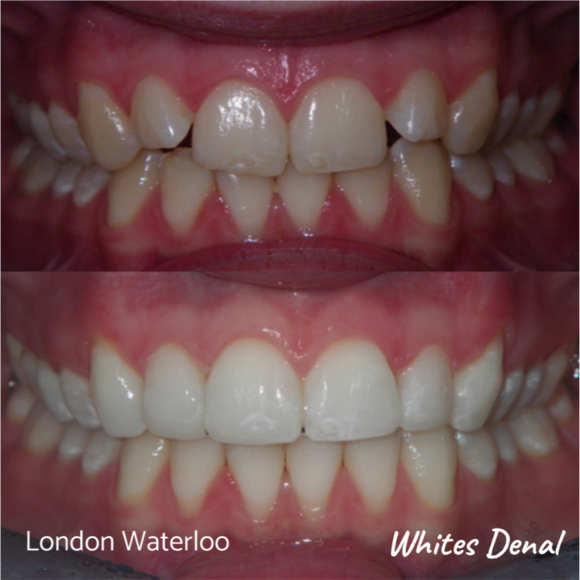 Composite bonding before and after. Whites Dental in London Waterloo