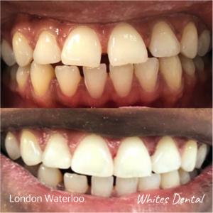 Composite Bonding before after | Cosmetic Dentist in London Waterloo 4