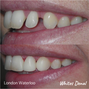 Composite Bonding before after | Cosmetic Dentist in London Waterloo 2