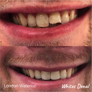 Composite Bonding before after | Cosmetic Dentist in London Waterloo 5