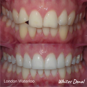 Composite Bonding before after | Cosmetic Dentist in London Waterloo 3