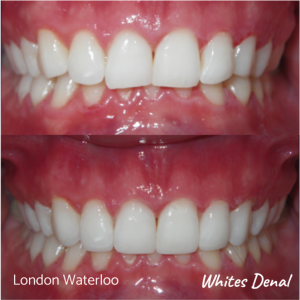 Composite Bonding before after | Cosmetic Dentist in London Waterloo 1