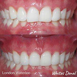 Cosmetic Dentist Composite Bonding In London
