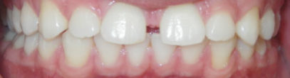 Fixed Braces in London Waterloo | Whites Dental