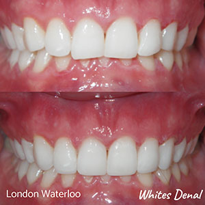 fixed braces Before And After | Cosmetic Dentist in London Waterloo