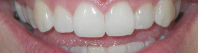 Whites Dental