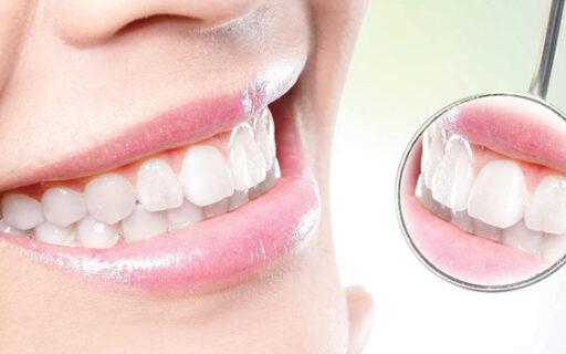 Smile Makeover | Whites Dental