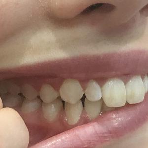Invisalign Consultation | Whites Dental