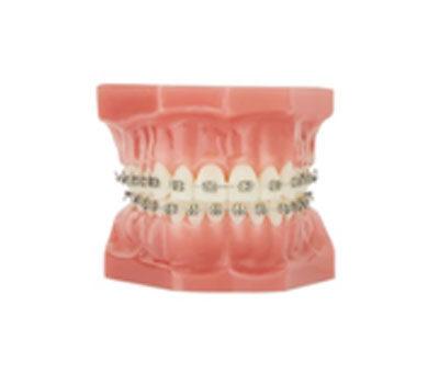 Fixed Braces waterloo | Whites Dental