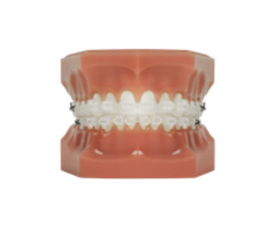 Fixed Braces | Whites Dental