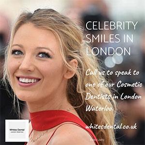 Cosmetic Dentist Teeth Whitening in London Waterloo