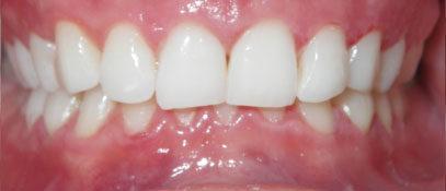 Composite Veneers | Whites Dental