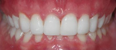 Porcelain & Composite Veneers | Cosmetic Dentist in London Waterloo | Whites Dental