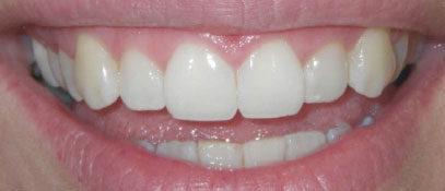Porcelain & Composite Veneers | Whites Dental