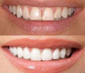 | Whites Dental