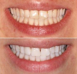 Are braces a turn off | Orthodontist in London Waterloo