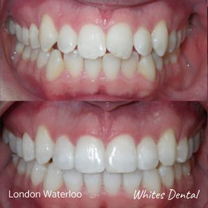 Can You Request To Get Your Braces Taken Off Early | Orthodontist in London Waterloo