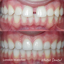 Can you eat pizza with braces   Orthodontist in London Waterloo