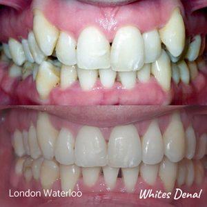 Do braces make your teeth yellow   Orthodontist in London Waterloo