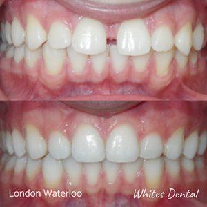 What happens if you keep braces on too long | Orthodontist in London Waterloo
