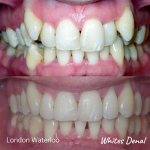 What is the cheapest cost of braces | Orthodontist in London Waterloo