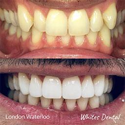 Is it too late to straighten my teeth | Orthodontist in London Waterloo
