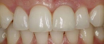 Teeth-Alignment | Whites Dental