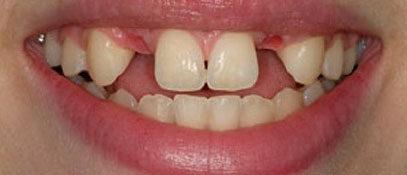 Dental Issue | Whites Dental