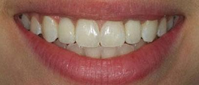 Dental-Alignment | Whites Dental