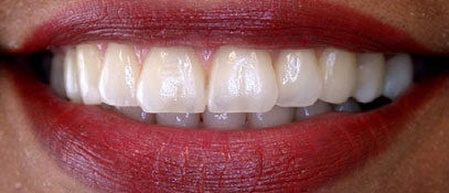 Dental Teeth Alignment | Whites Dental