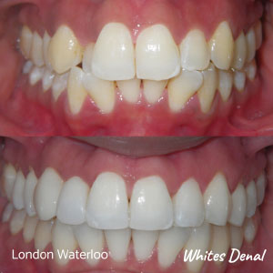 Do Braces Change Your Voice | Orthodontics in London Waterloo | Whites Dental