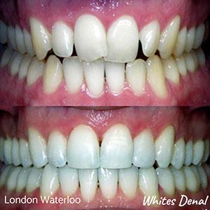 Orthodontic braces London | Whites Dental